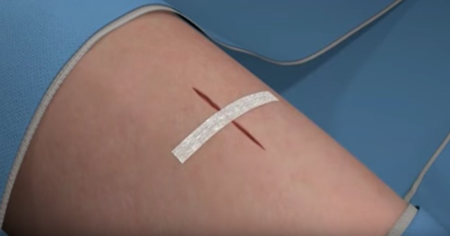 how to put steri strips on a cut